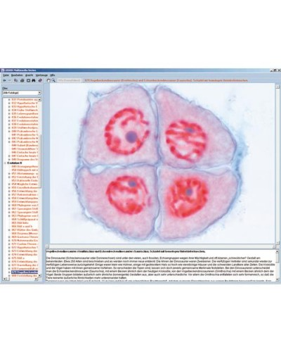 Division (Mitosis and Meiosis, Interactive CD-ROM)