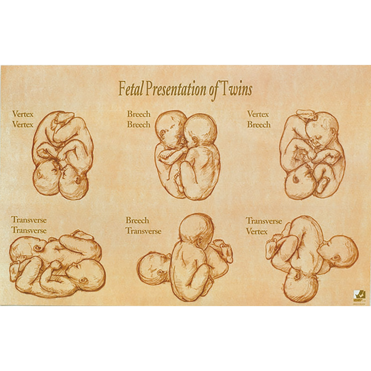Fetal Development & Presentation of Twins Chart
